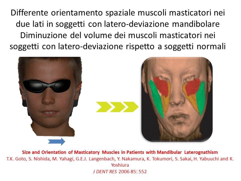 Deviazioni madibolari 2 2.jpg