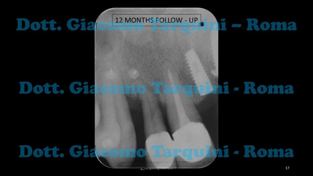 Diapositiva17.thumb.JPG.16a96b25756efa781ed6412f188344c4.JPG
