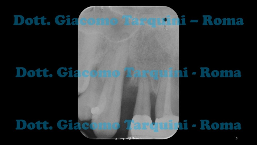 Diapositiva3.thumb.JPG.1b154dcfdea8a2e333e9cd1d0f5ed0d2.JPG