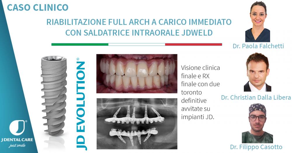 Riabilitazione Full Arch a carico immediato con l'uso della saldatrice intraorale JDWeld.png