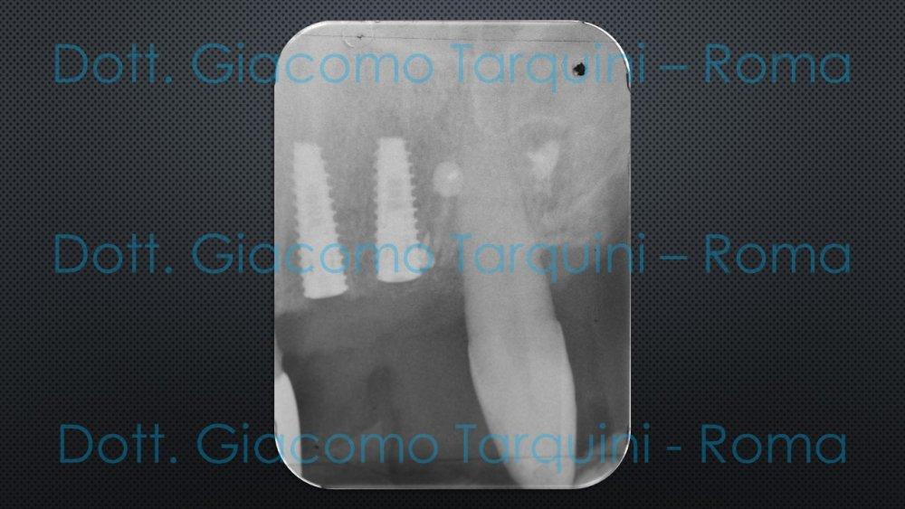 Diapositiva15.thumb.JPG.f385e60bd74c762c83ecd74fe27436fd.JPG