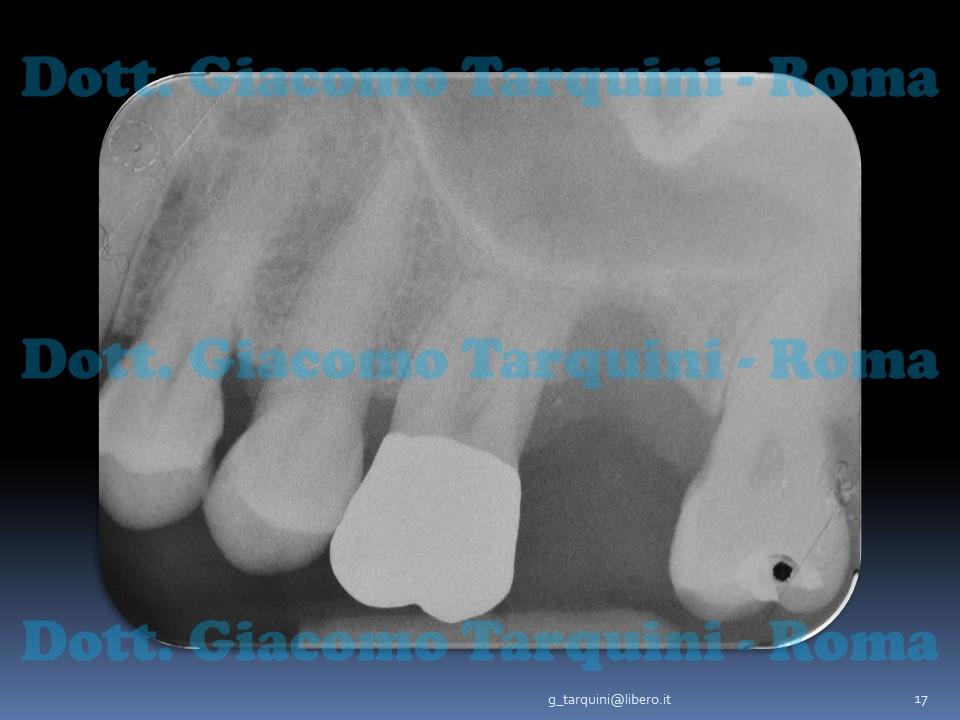 Diapositiva17.JPG.600d69b658690754a7b909f7d5519e86.JPG
