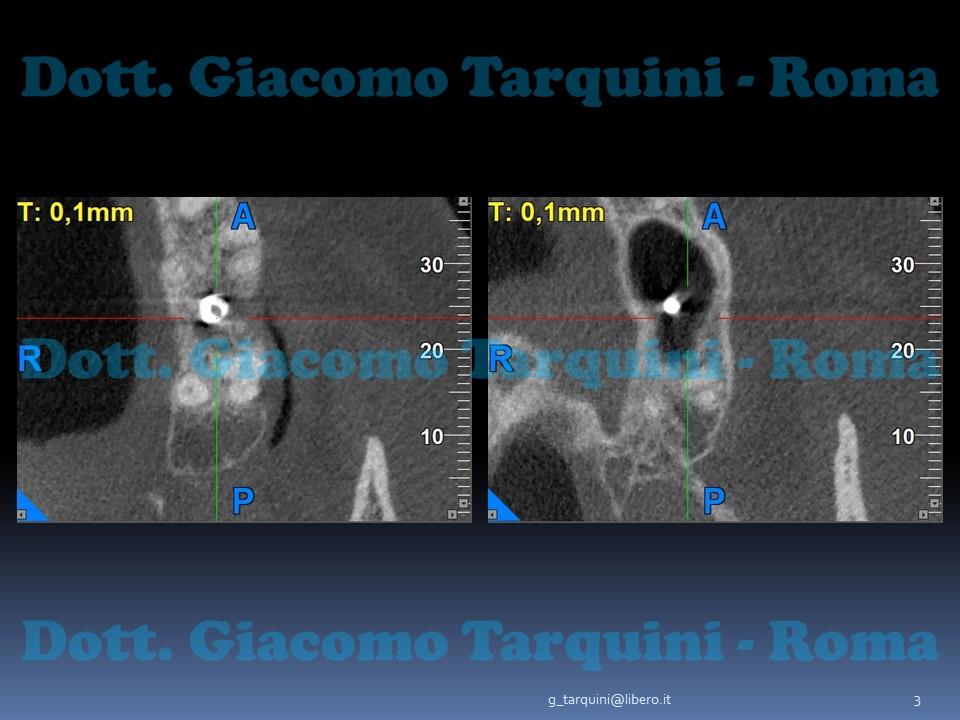 Diapositiva3.JPG.58944ed5d57ccaa57b46d01f384c71f7.JPG