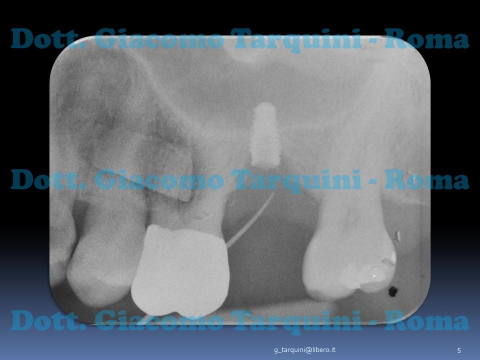 Diapositiva5.JPG.bf6e64a378bf0b60885358361aaa41ef.JPG
