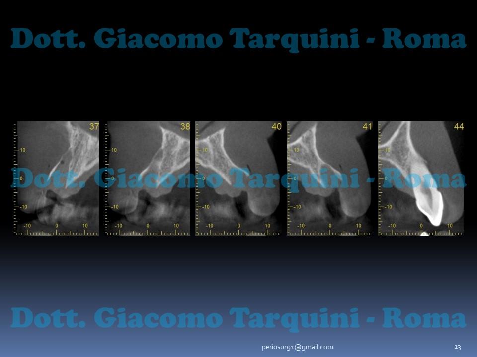Diapositiva13.JPG.89afc76838b92916612ff1403a9f207c.JPG
