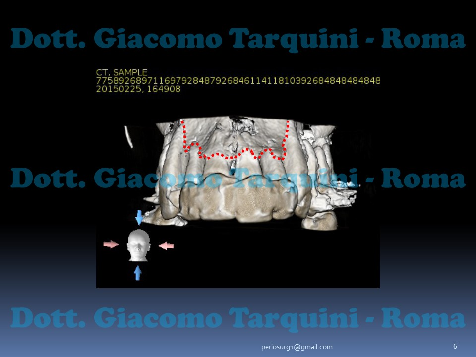 Diapositiva6.JPG.2c39de021e8f391c9cec4be84e76f9e9.JPG