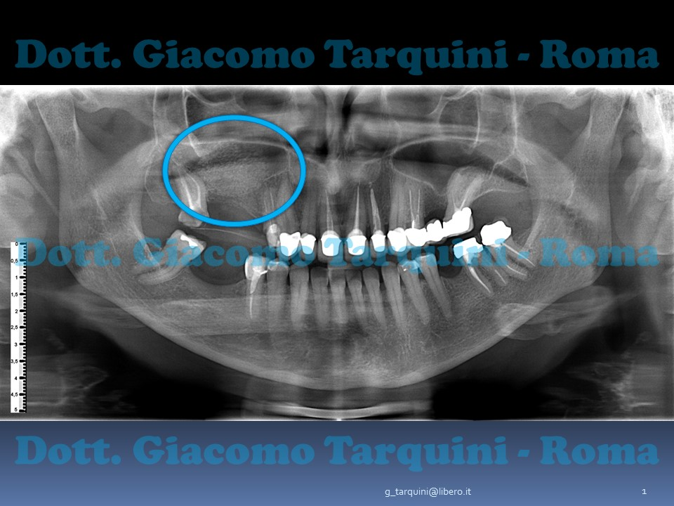Diapositiva1.JPG.b5bb91783ce67e5488376e4da133d592.JPG