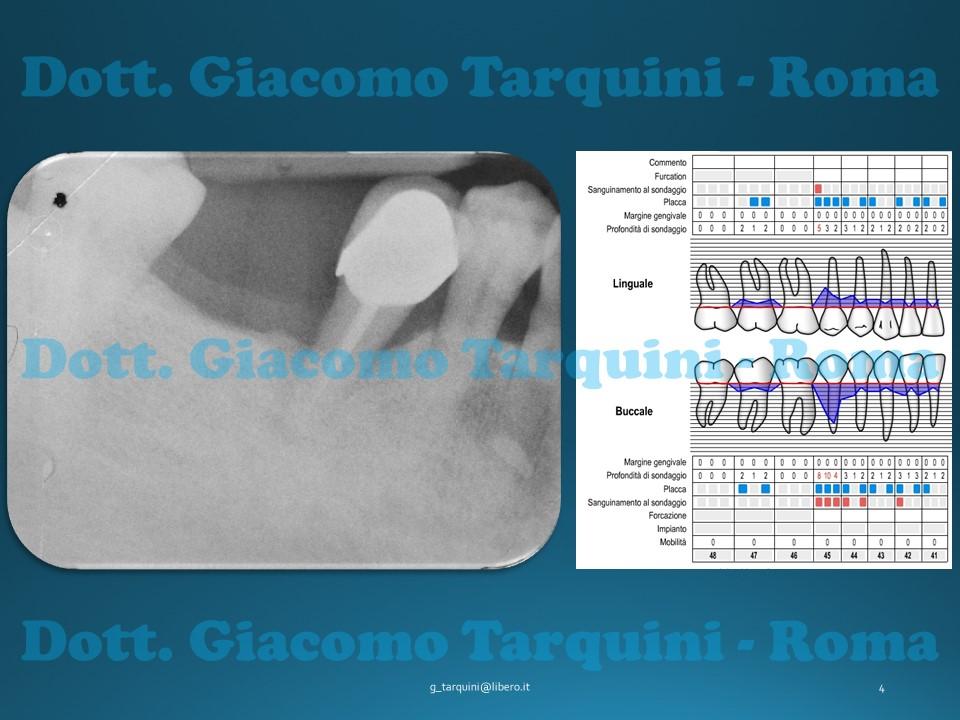 Rigenerazione Tissutale Guidata (G.T.R.) Su Difetto Circonferenziale: Rientro Chirurgico