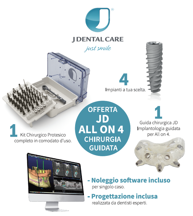 offerta_JD_All-on-Four_chirurgia_guidata.png