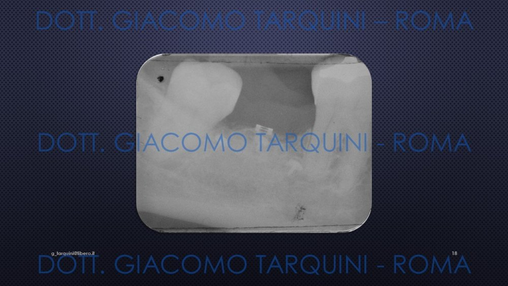 Diapositiva18.thumb.JPG.bd1774966f08817462d99835bd4ad12e.JPG