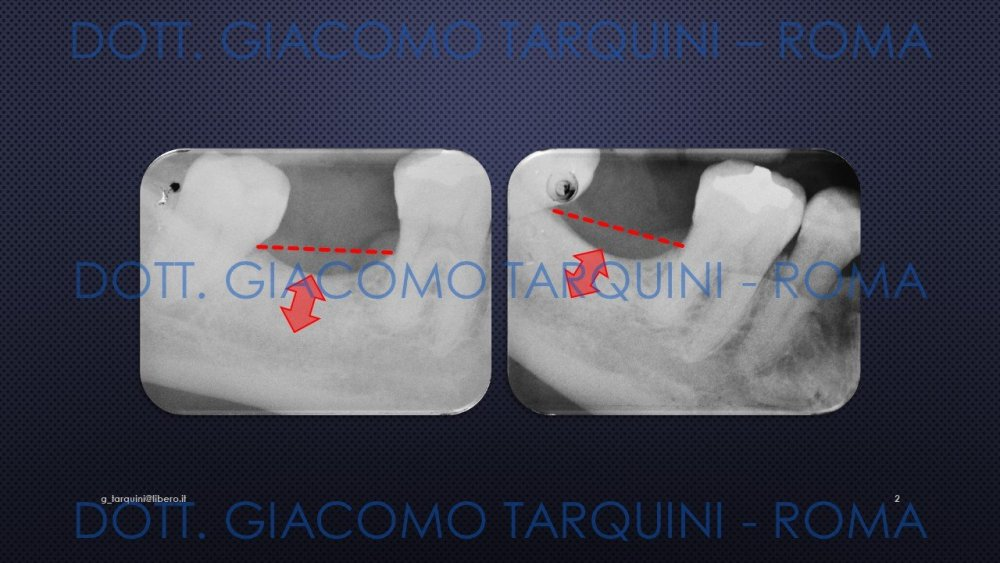 Diapositiva2.thumb.JPG.a67af48e8ed0ad040bdedc8e098bdf5d.JPG