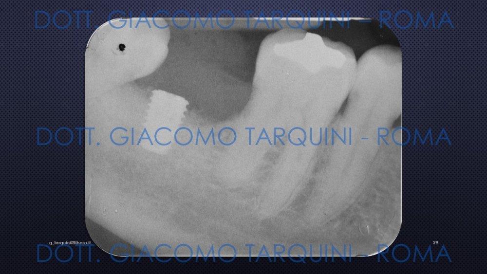 Diapositiva29.thumb.JPG.f00c166f650bc69a381f704454f93afa.JPG