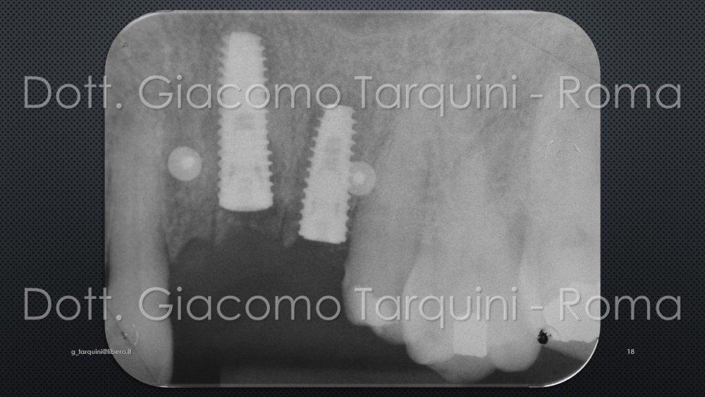 Diapositiva18.thumb.JPG.dce0aeeffa6d622bf706a41e57754030.JPG