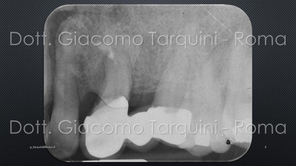 Diapositiva2.thumb.JPG.9f27b501a402288ac9b92d730c48dcd2.JPG