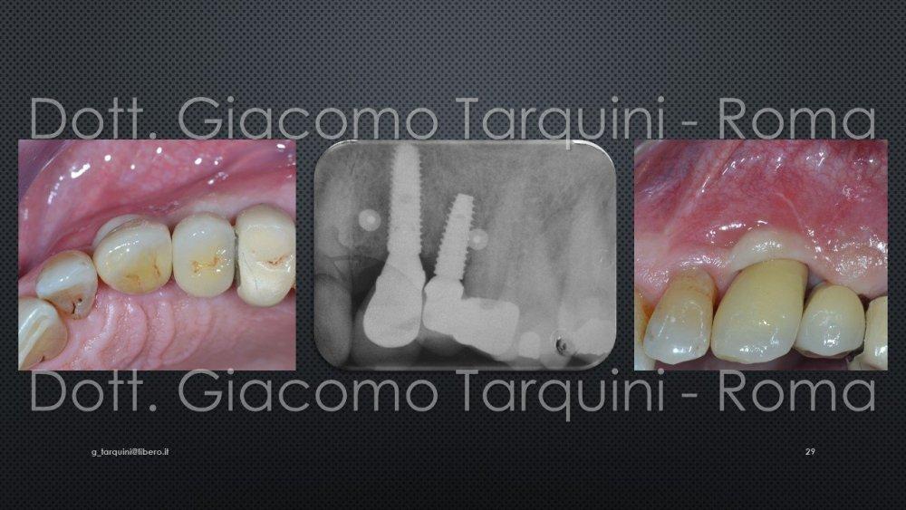 Diapositiva29.thumb.JPG.afa1e5d061aa955a3dbad12893809e82.JPG