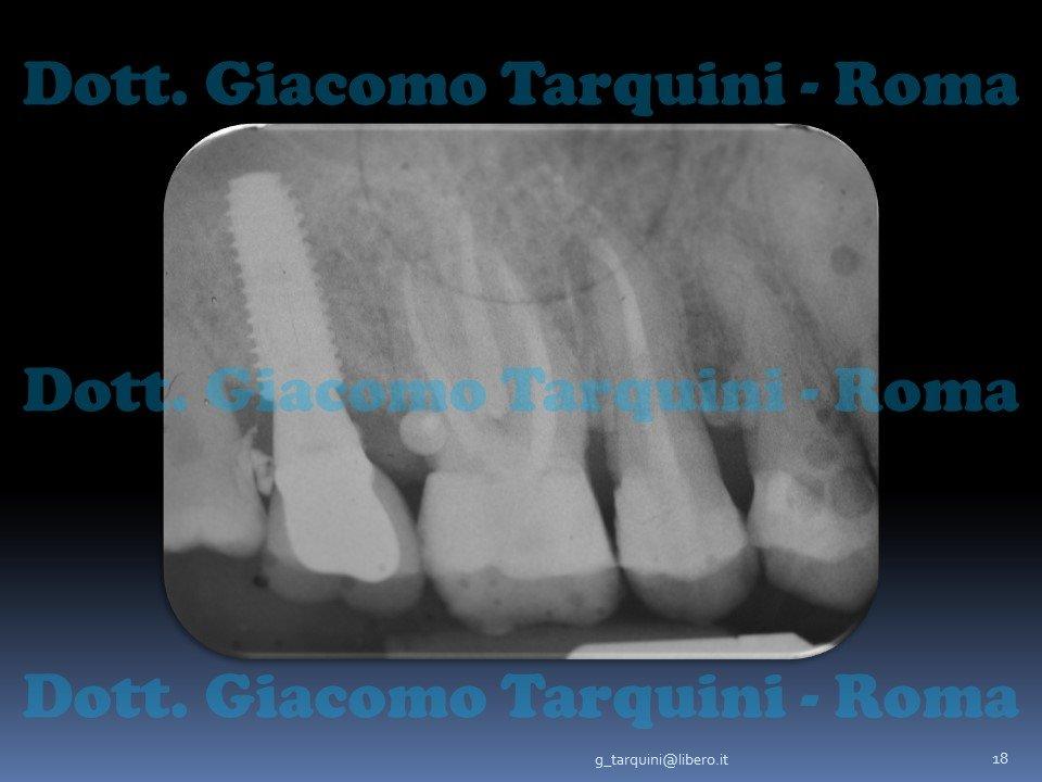 Diapositiva18.JPG.237b73952c162d9a087e7034d19df487.JPG
