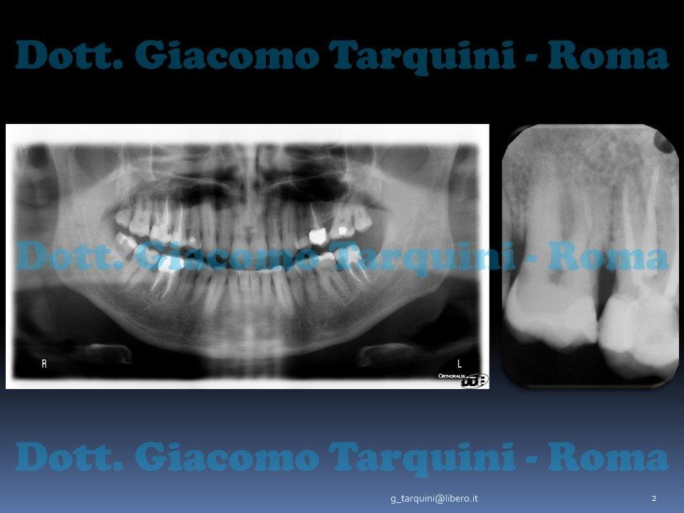 Diapositiva2.JPG.7a93c37806eb2696ff539664465af6b6.JPG