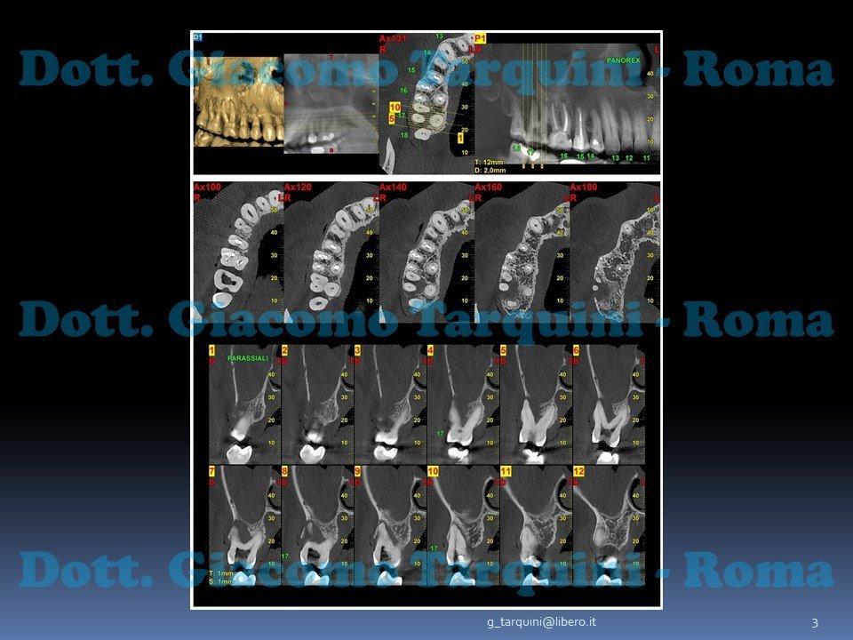 Diapositiva3.JPG.fe45f1b0e21e0595b81dc4f982d309c2.JPG