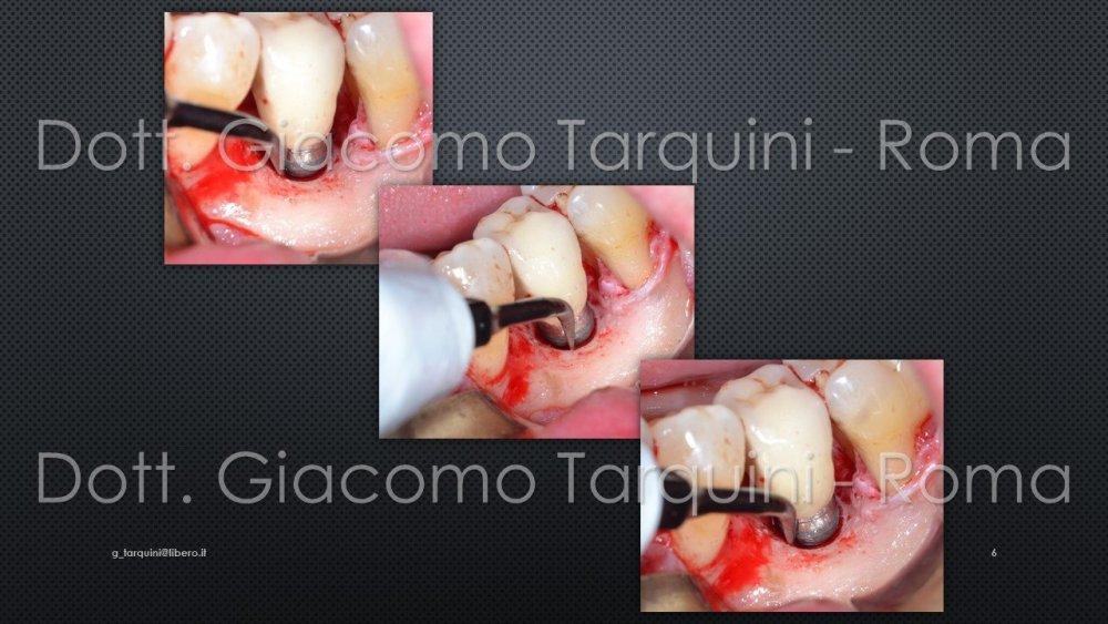 Diapositiva6.thumb.JPG.7b78ec16a68110e9a19f1df80c58e309.JPG