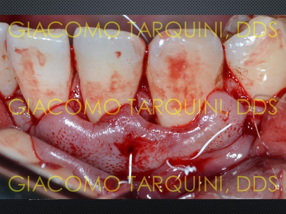 Diapositiva18.JPG.2300cf6c099a633d16888857c3b83ff7.JPG