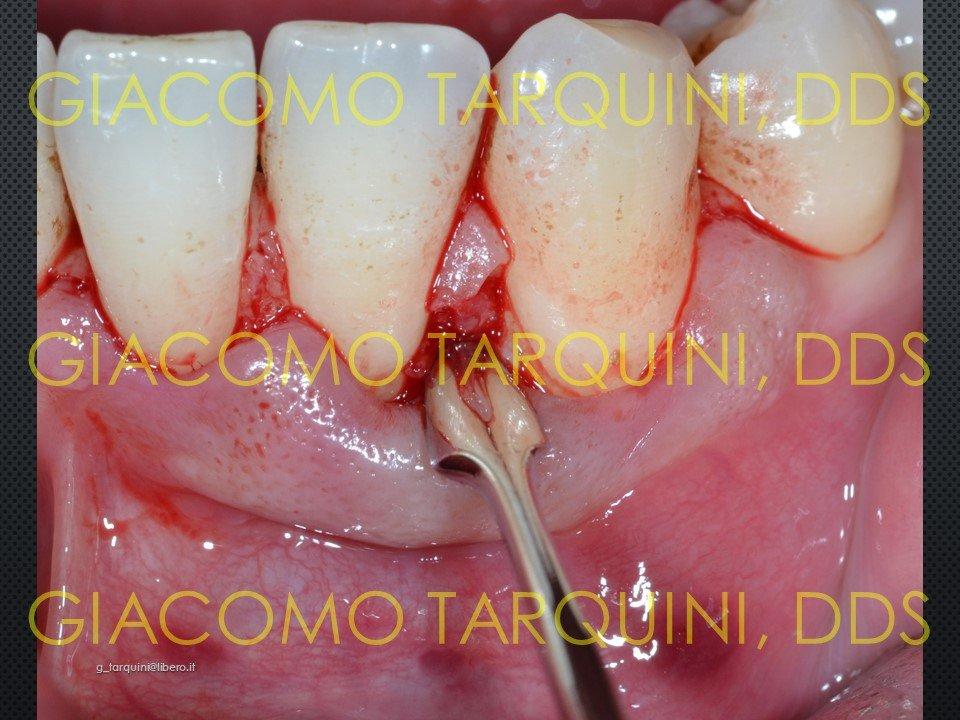 Diapositiva5.JPG.18948d684229b9f0b885cb39d2a3d171.JPG
