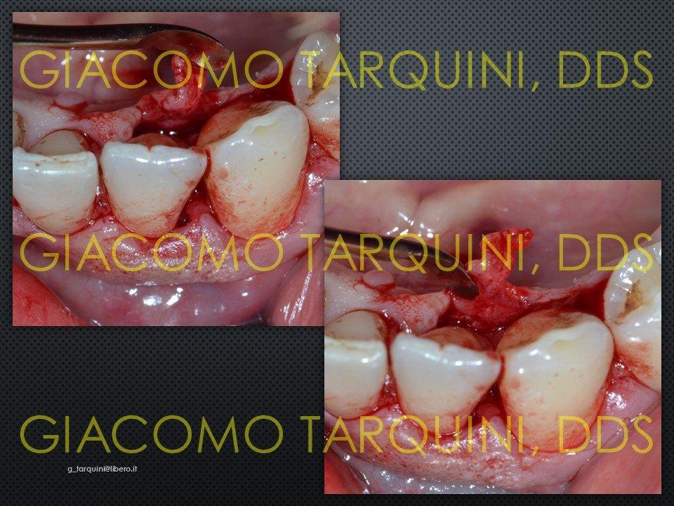 Diapositiva7.JPG.b075897cd2a3540df5518af64573f026.JPG