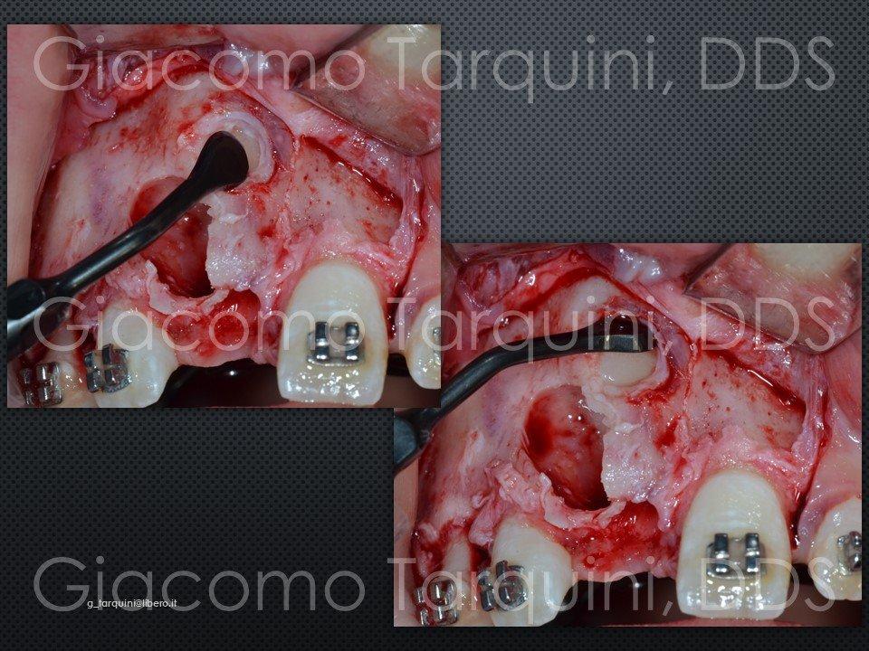 Diapositiva13.JPG.42c98edb0899184339ebc4ad691e5fab.JPG