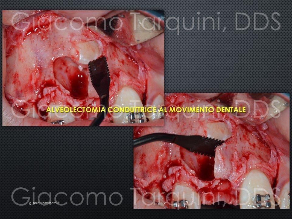 Diapositiva14.JPG.8485f29725bda418365c96999a942971.JPG
