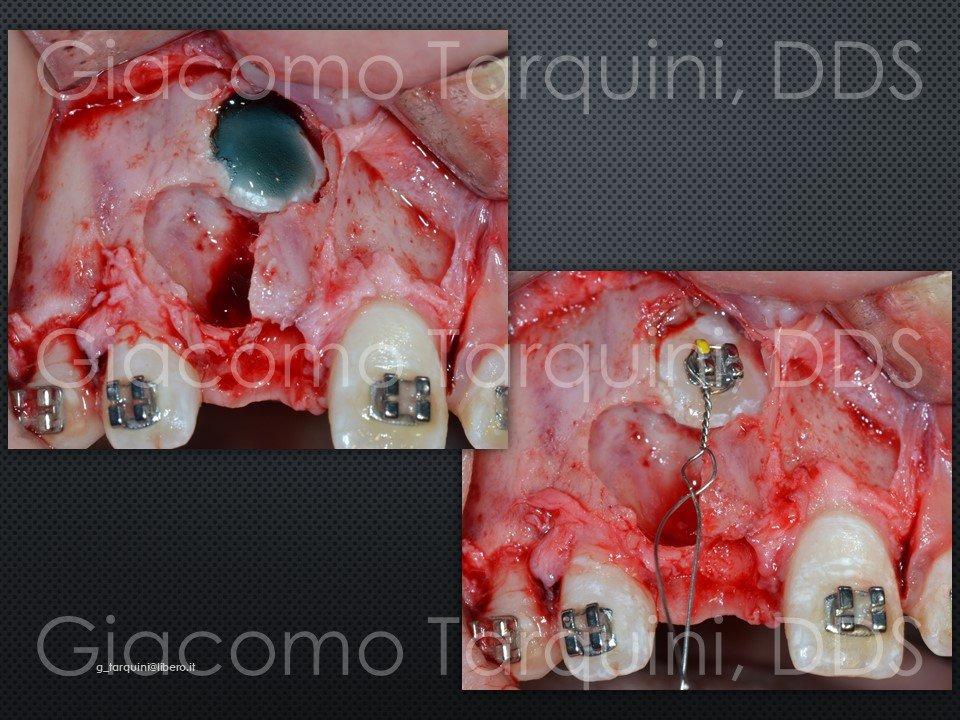 Diapositiva16.JPG.85a9acc4d5cc7a1a8e0992d58cb209cd.JPG