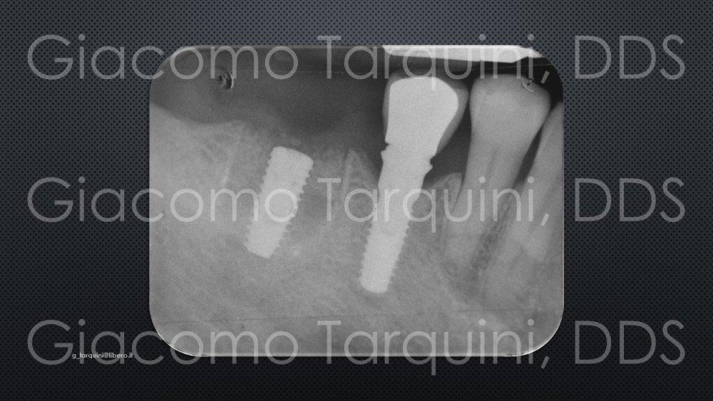 Diapositiva17.thumb.JPG.7919b80460d023257fc57db6ce1fb895.JPG