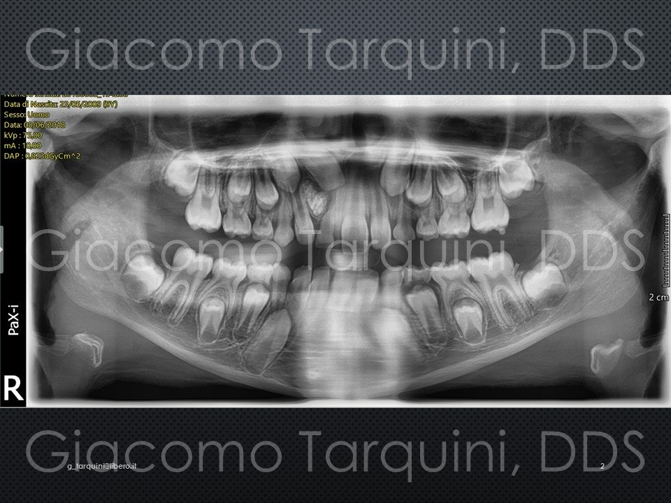 Diapositiva2.JPG.cf4d84e02a3f8890591b27911575652c.JPG