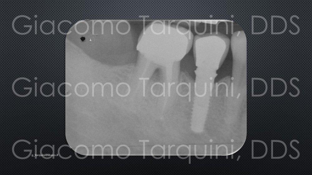 Diapositiva2.thumb.JPG.ee3469d5ca9f1a360dd841b5c876edb1.JPG