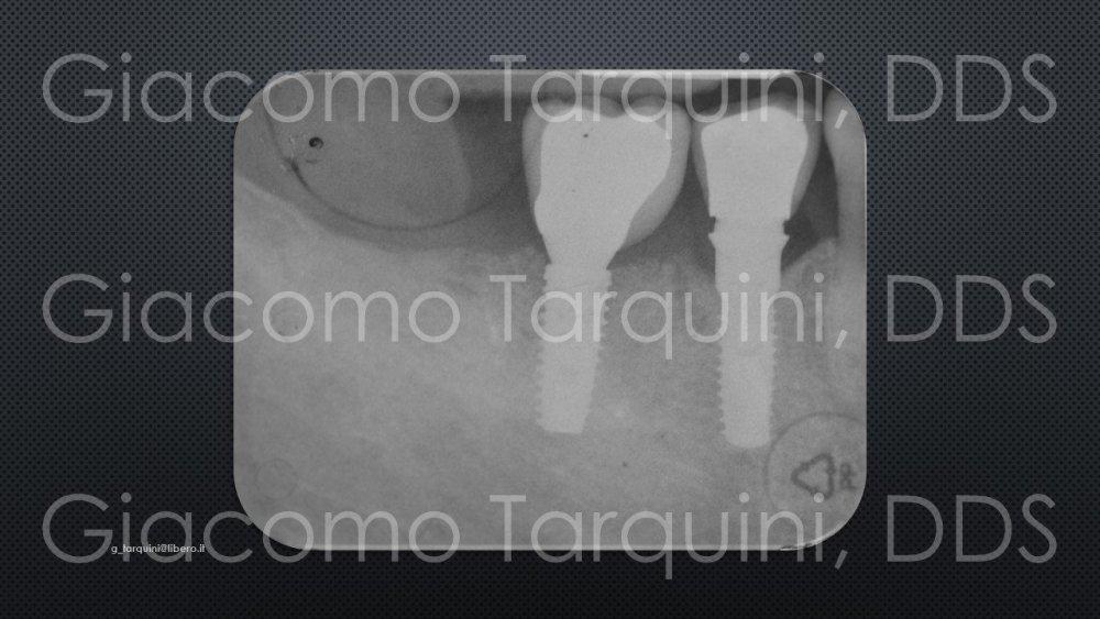 Diapositiva22.thumb.JPG.3a51fdb103ba7672bc8f9bb5027e7405.JPG