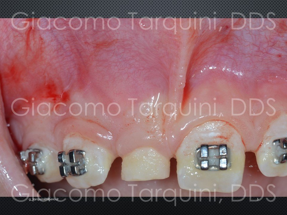 Diapositiva5.JPG.ac66f1bdf854e8d98e2220ebf5d73cfe.JPG
