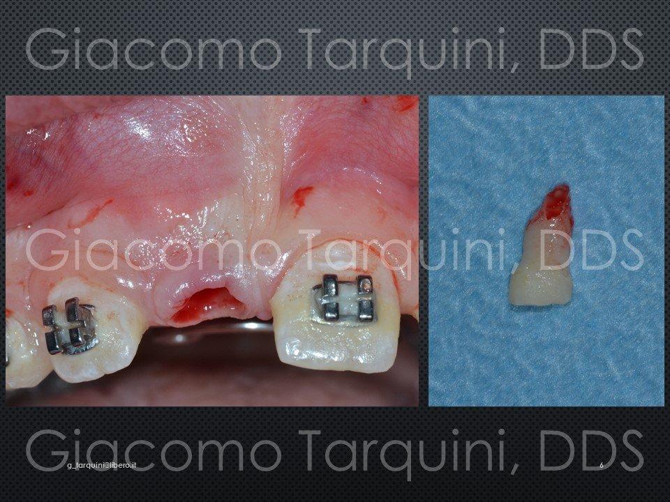 Diapositiva6.JPG.9e0a1c5155d44018298f95fe0afa0e54.JPG