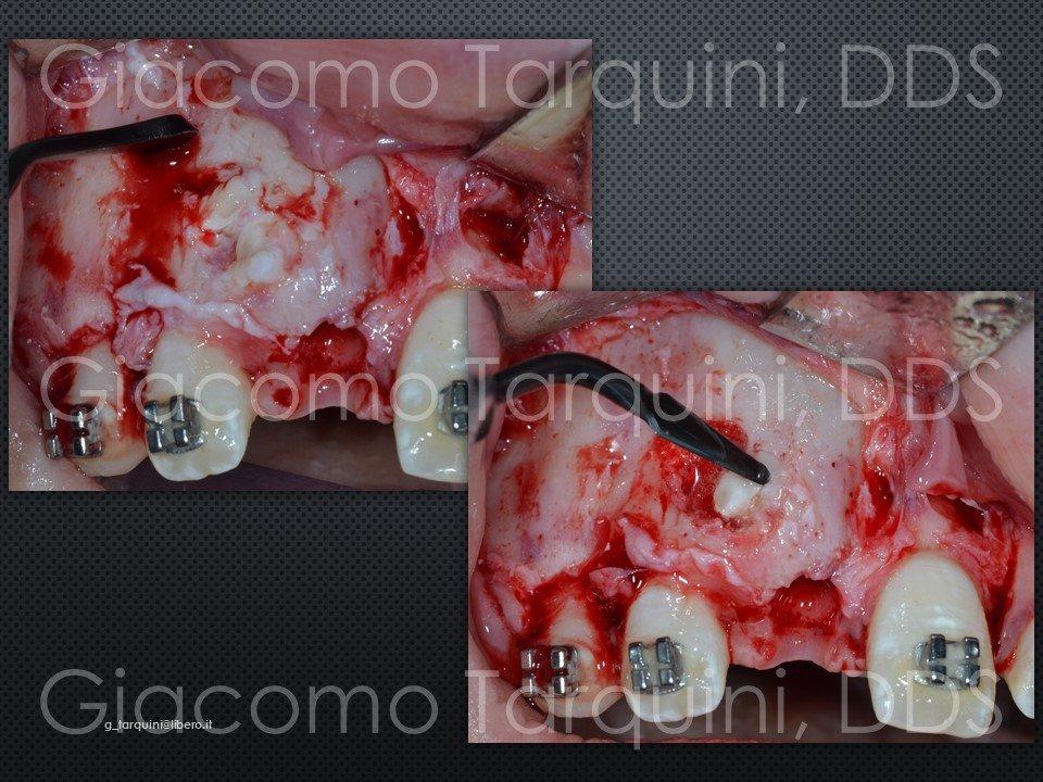 Diapositiva8.JPG.9f1e5268d37e8a49dd78dfc7959966b6.JPG