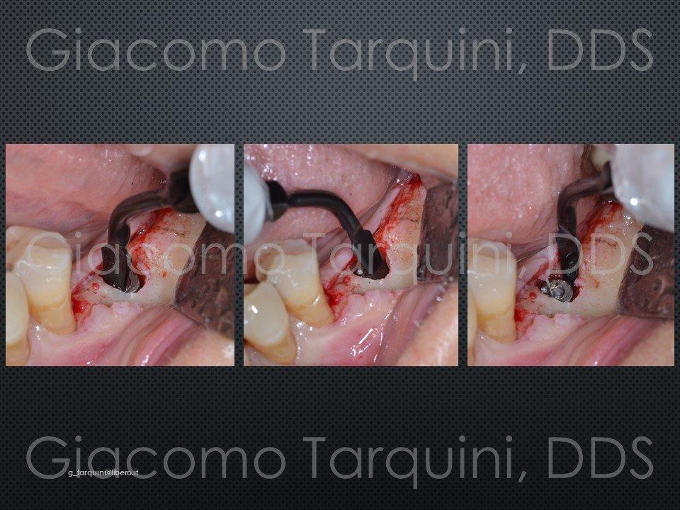 Diapositiva11.JPG.c8aaaf83a5ef57a2dc09eb079d5593ca.JPG