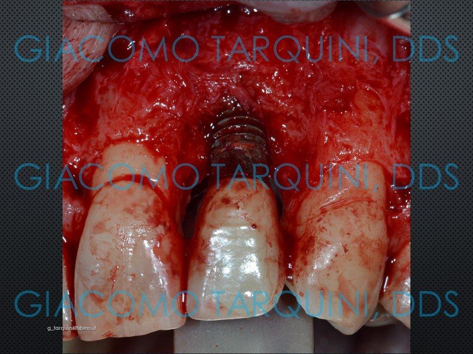 Diapositiva10.JPG.43d6850c59de6356f567f4f6722a3244.JPG
