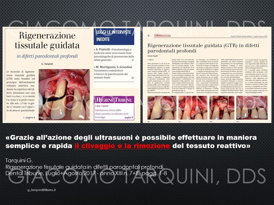 Diapositiva8.JPG.1334bdf9f182df3db0edd2218d04ea61.JPG