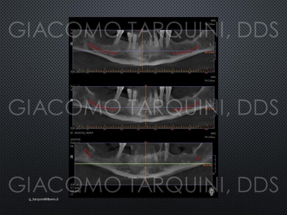 Diapositiva3.JPG.d345b6fc31b0aee20718f1719f57af1e.JPG