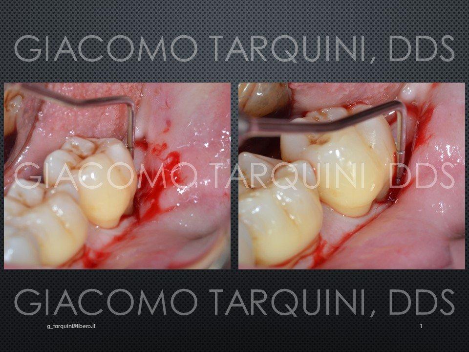 Diapositiva1.JPG.31acb18ba59b25f830a464d1c69984c5.JPG