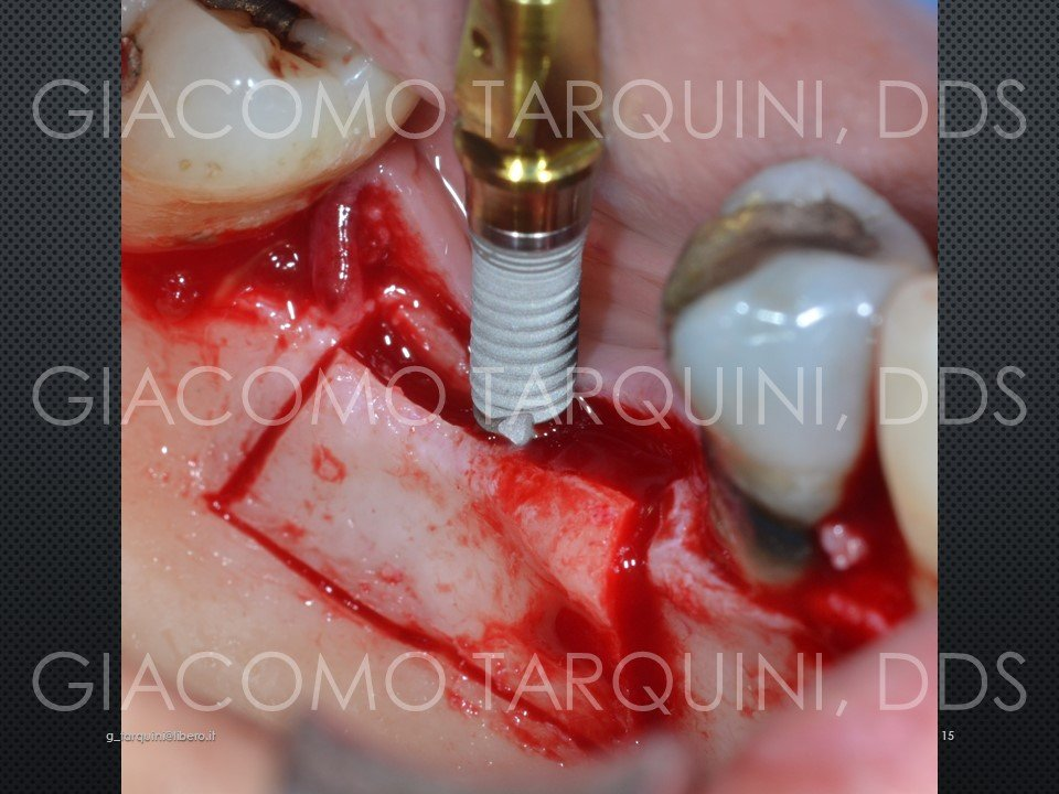 Diapositiva15.JPG.f405c6ca23dbb063d36d59bf8c534e39.JPG
