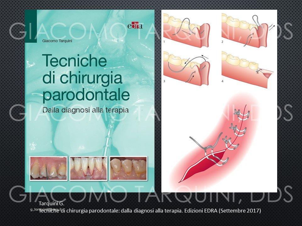 Diapositiva16.JPG.62750fd2d0d3a894a4a07267d347eac1.JPG