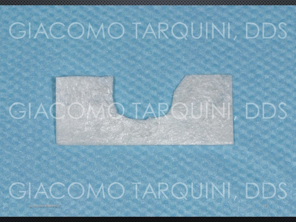 Diapositiva18.JPG.03297e7f189abce411c1021277c75549.JPG