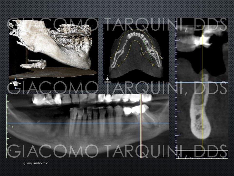 Diapositiva2.JPG.0162e297c62c6295bec10399f2b51ace.JPG