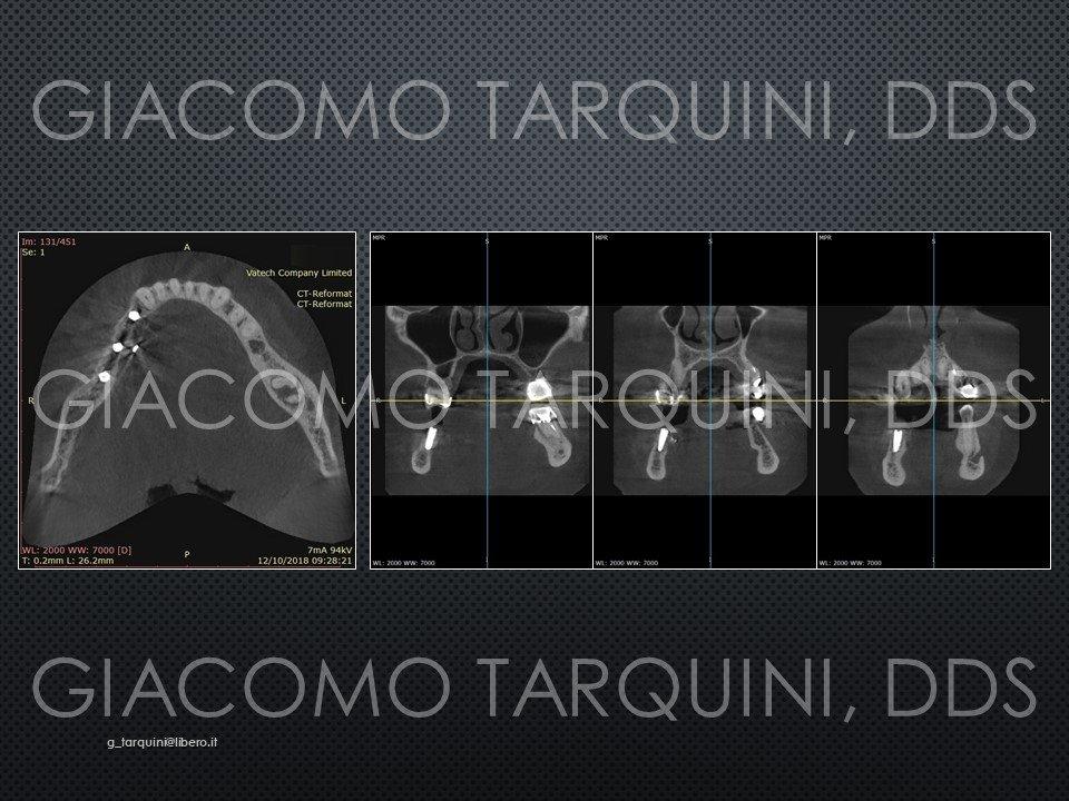 Diapositiva31.JPG.9120c5b017103c4903ca9537de94d922.JPG