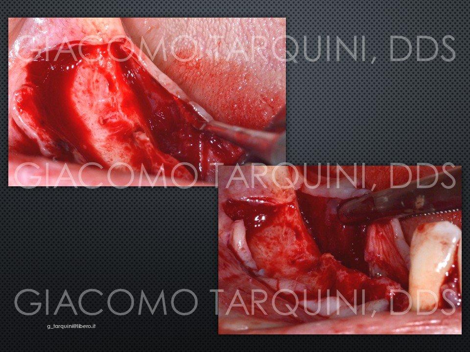 Diapositiva4.JPG.a6a9167cafe8db9c532c1149d81cb517.JPG