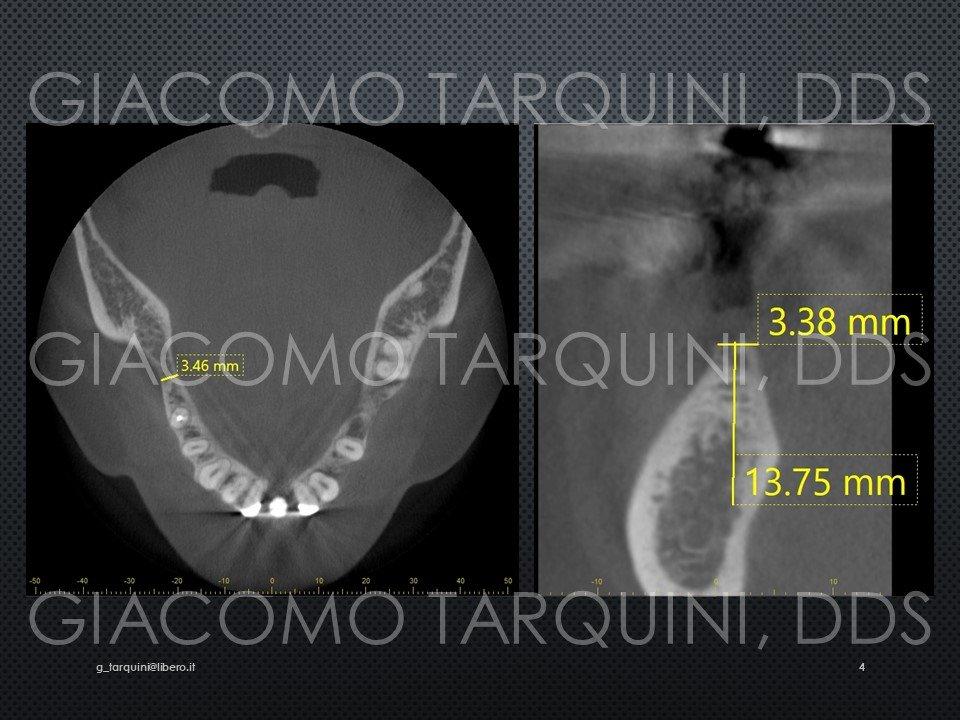 Diapositiva4.JPG.d20fdb911f2727cb735a521b08bda5c5.JPG