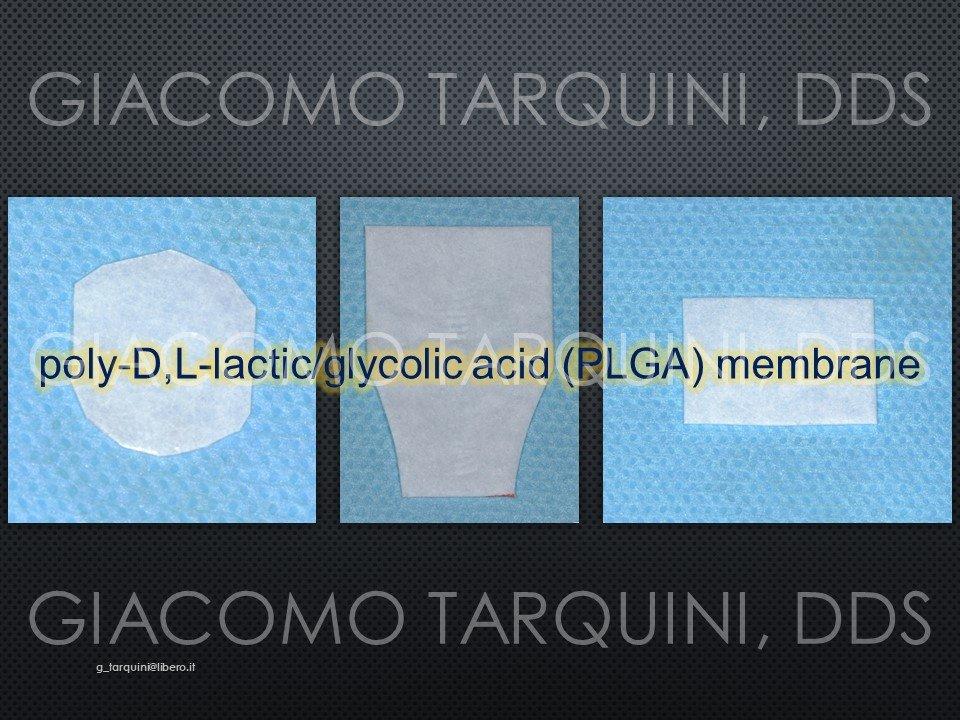 Diapositiva9.JPG.11a0b6b8a19d95ac3ce71c7d10df1f23.JPG