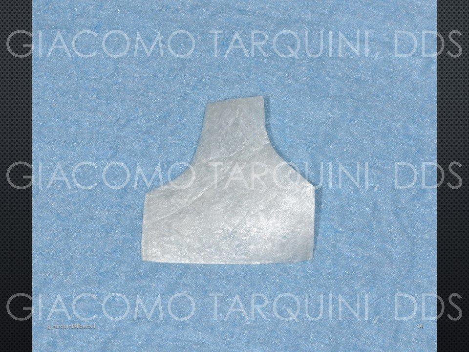 Diapositiva14.JPG.4037b15ca28f55b6a8550cc6398f2cd4.JPG